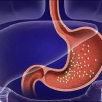 Бактерии в желудке при гастрите