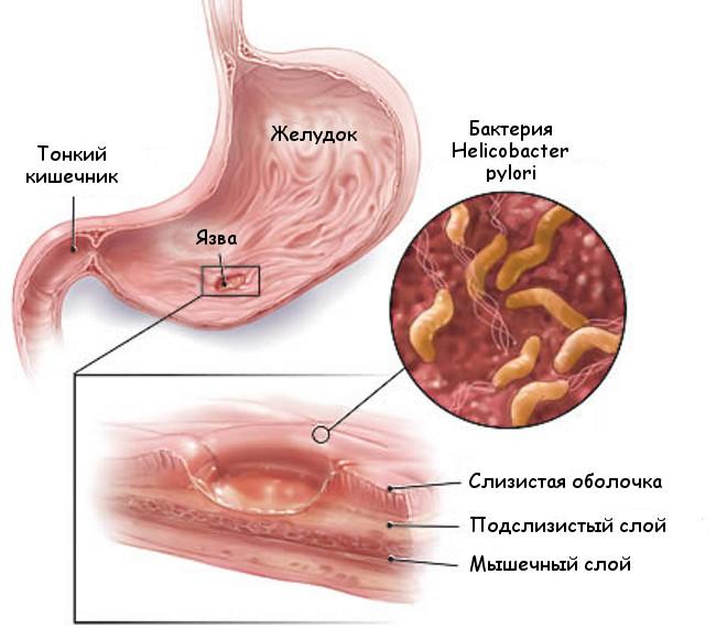 Бактерия хеликобактер пилори как причина